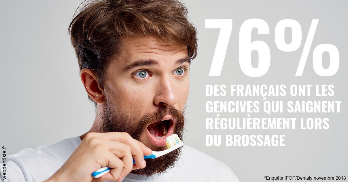 https://dr-grandemenge-agnes.chirurgiens-dentistes.fr/76% des Français 2